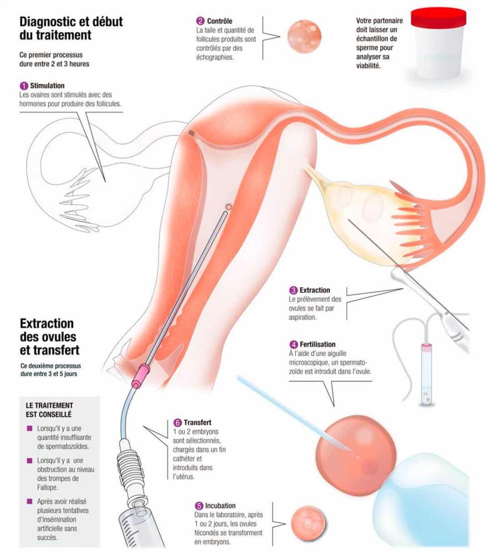 Ostéopathe spécialiste fertilité Yvelines